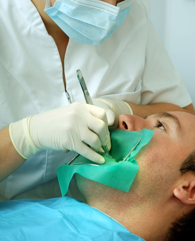 root canal therapy in Raleigh