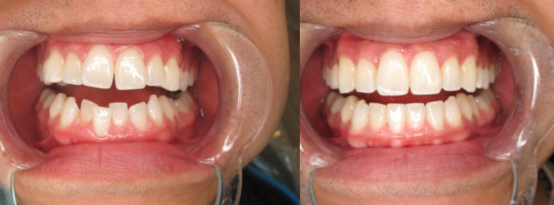 Before and after Invisalign Orthodontic Treatment